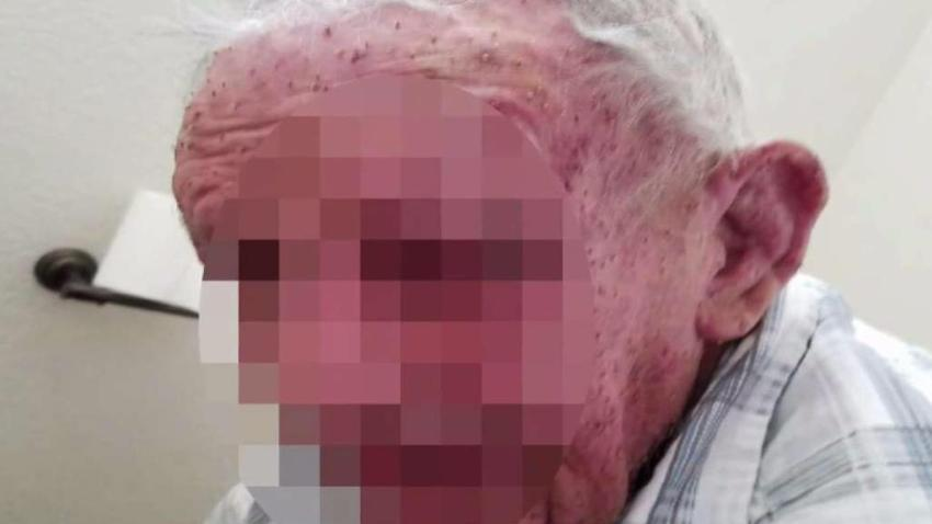 Bee_Attack_Leaves_77-Year-Old_Fighting_for_His_Life.jpg