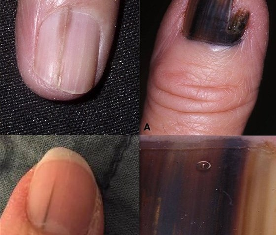 nail-melanoma-today-square-190408_910ede9535c926304e70ed57aaaf936a.fit-560w