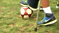 Amputee Soccer Players Receive Prosthetic Legs