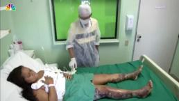 Doctors in Brazil Using Fish Skin to Help Burn Victims