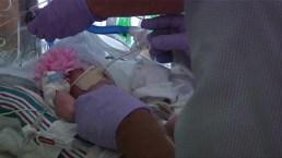 Breast Milk Banks Face Scrutiny as Demand Rises