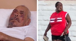 Woman Charged With Attempted Murder in Beating of Man, 92