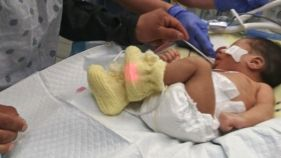 Baby of Slain Teen Opens Eyes for 1st Time, Family Says