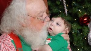 Santa Meets Baby Born With Partial Skull