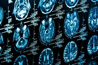 See Inside Einstein's Brain... Literally