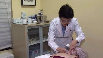 Locals Use Acupuncture to Relieve Pain
