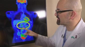 New Hope for Pancreatic Cancer Patients