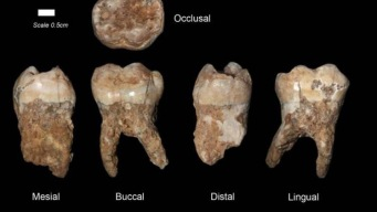 Scientists Discover 400,000-Year-Old Tartar on Cavemen Teeth