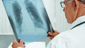 Thousands in U.S. Diagnosed With Tuberculosis Every Year