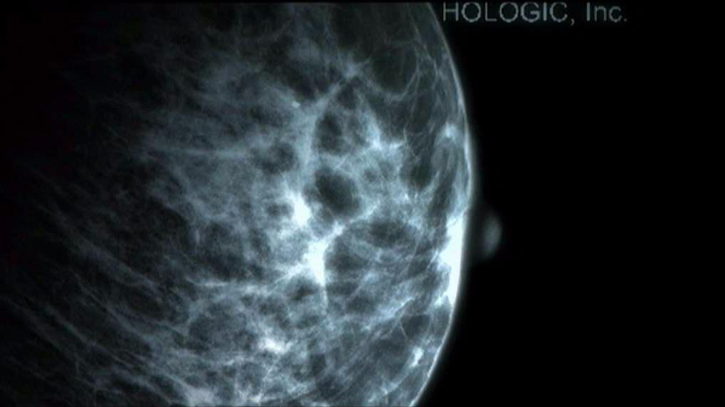 3-D Mammograms Can Be Critical in Diagnosing Breast Cancer