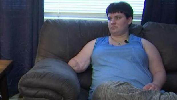 Va. Amputee Believes Medicaid Expansion Will Get Her Life Back on Track