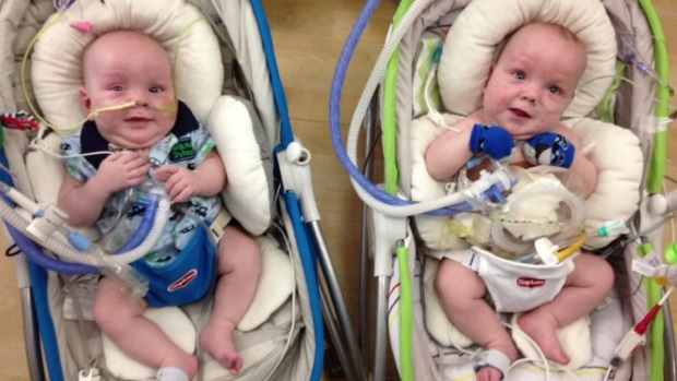 [DFW] Formerly Conjoined Twins Continue Recovery After Separation
