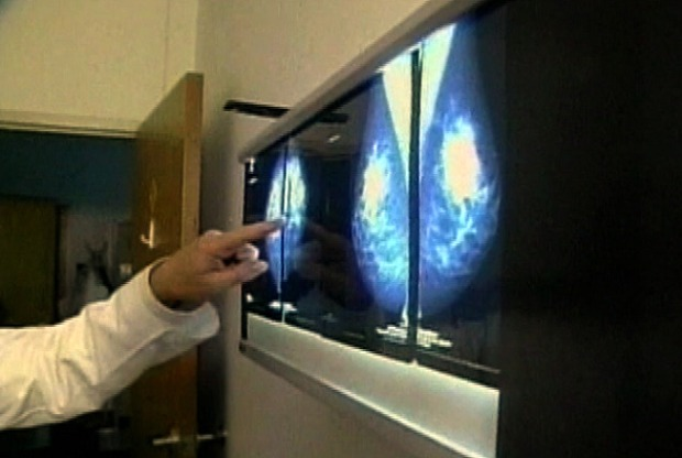 [DC] New Mammogram Guidelines Worry Some Health Pros