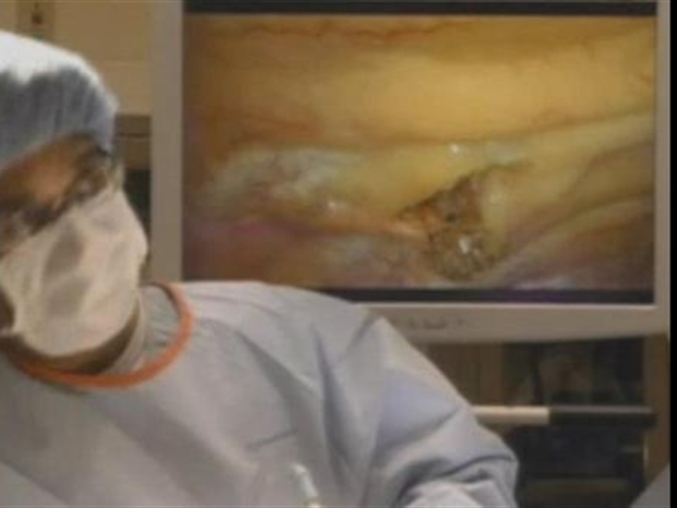 [DC] Doctors Remove Lung Tumors Through Two Holes