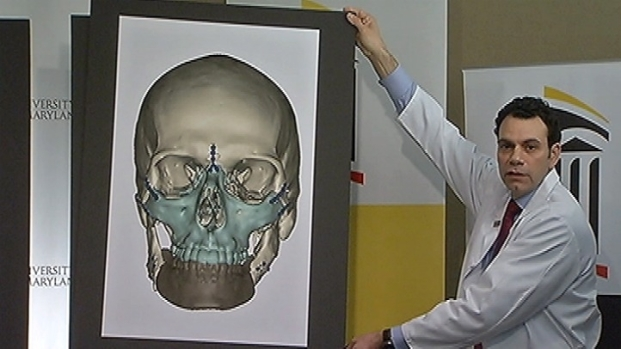 [DC] Landmark Face Transplant Is Most Comprehensive Yet