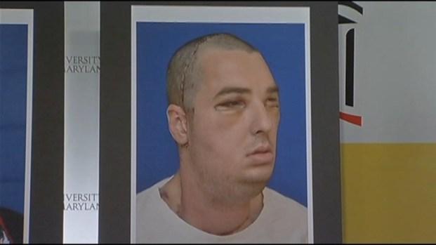 [DC] Va. Man Undergoes Full Face Transplant