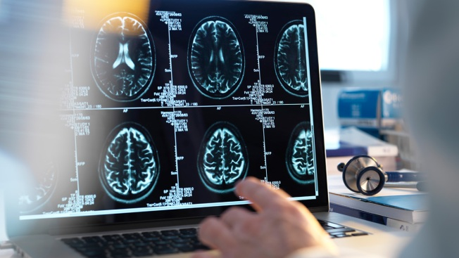 Stroke Prevention Tips: Don't Think You're Too Healthy