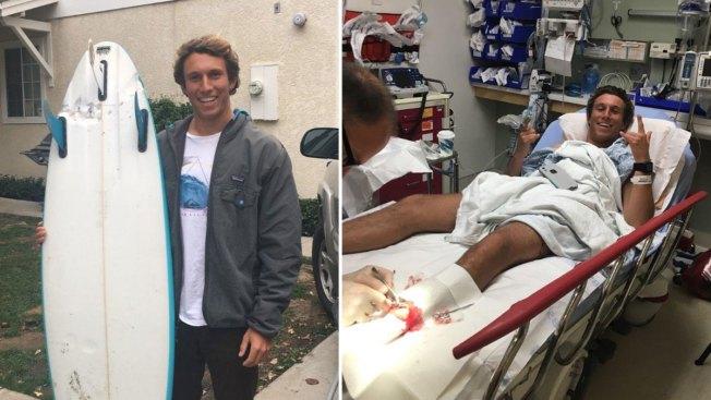 California Surfer Survives Shark Attack, Gets 50 Stitches