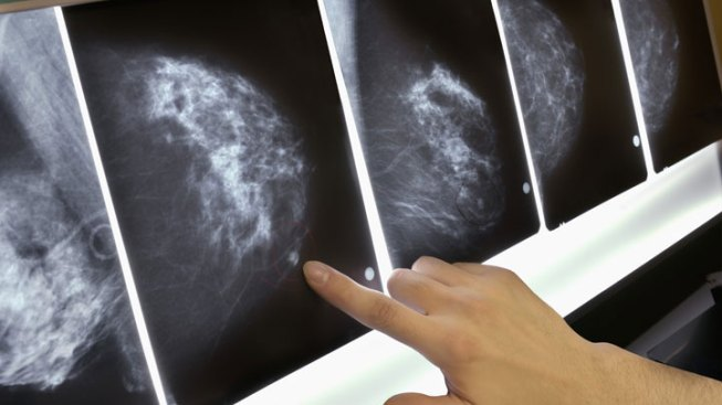 How Telehealth Technology is Revolutionizing Healthcare