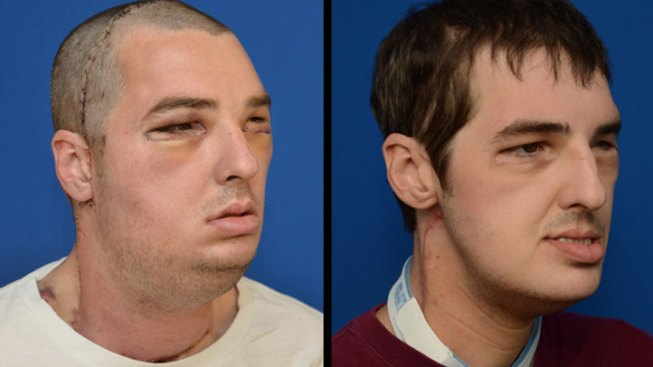 Seven Months Later, Face Transplant Patient Doing Well